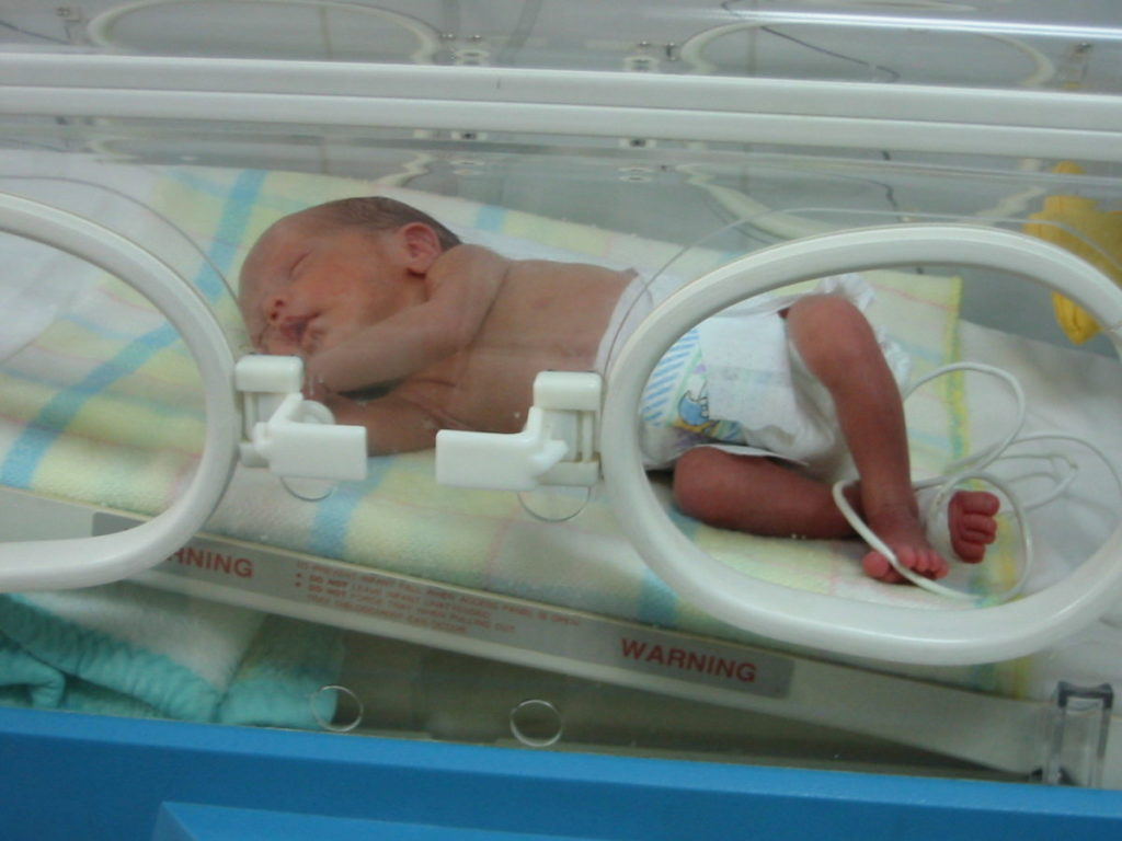 Photo of baby in medical box